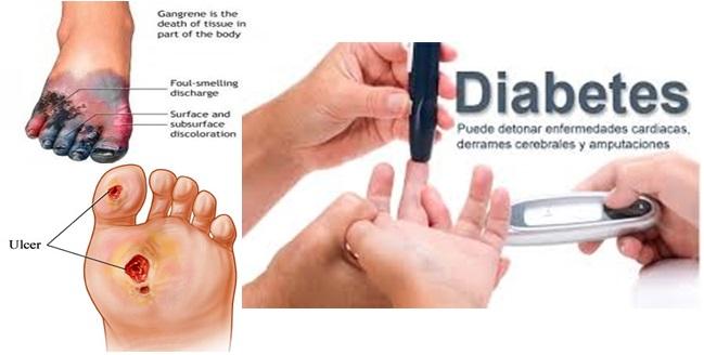 tipe-penyakit-diabetes-melitus