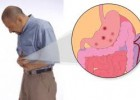 Manfaat Melia Propolis Untuk Penyakit Maag