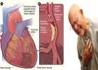 Manfaat melia propolis untuk jantung