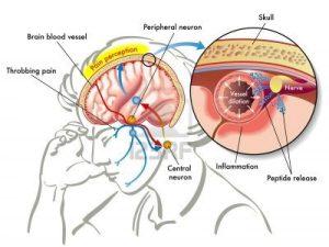 Mengenal-Penyakit-Migrain-dan-Vertigo