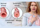 Terapi Melia Propolis Untuk Penyembuhan Penyakit ASMA
